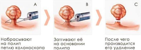Хирургическое удаление поипов в носу