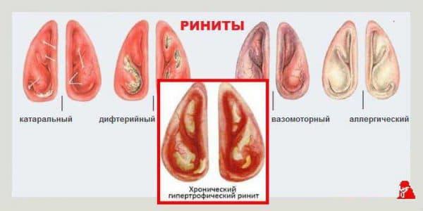 Хронические и острые воспалительные заболевания носа