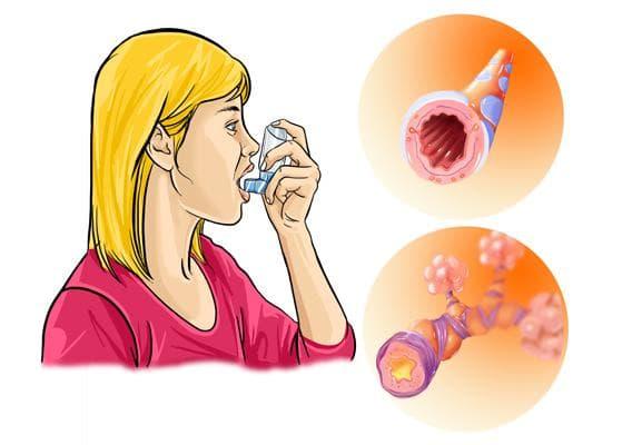 Аллергический бронхит – код по мкб-10: симптомы и лечение у детей