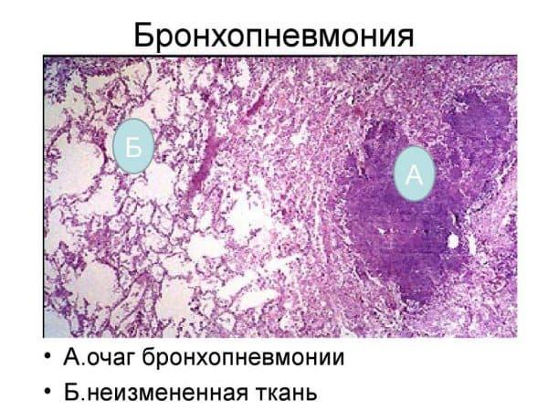 bronxopnevmoniya
