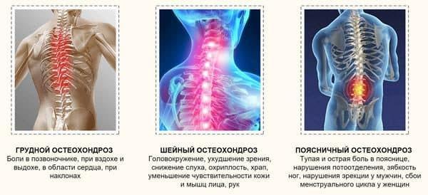 vidy-osteoxondroza