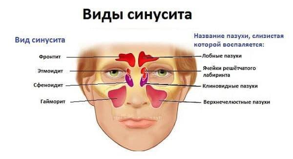 vidy-sinusita