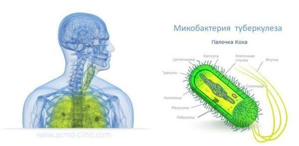 vobuditel-tuberkuleza