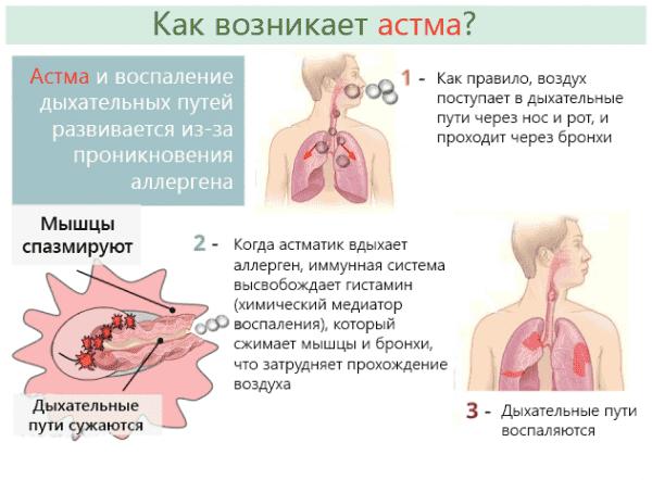 Провоцирующим фактором может быть не только аллерген, но и стресс, испуг.