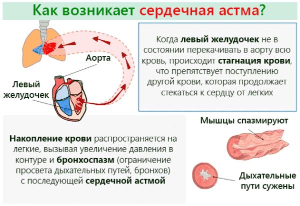 kak-voznikaet-serdechnaya-astma