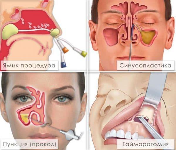 Методы лечения гайморита в стационаре