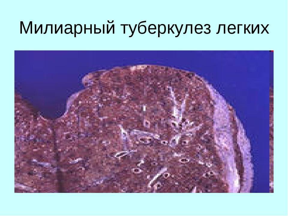 Милиарный туберкулез легких микропрепарат
