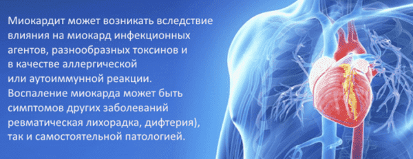 miokardita