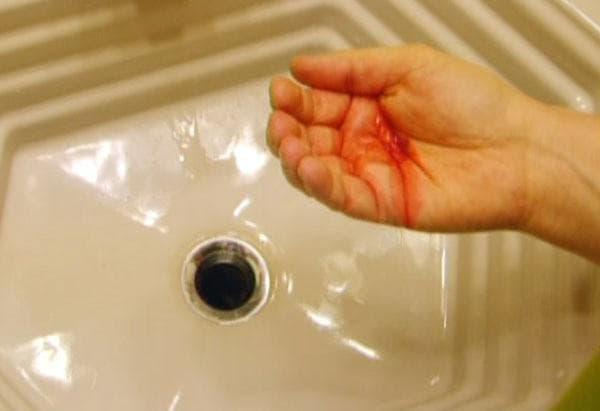 Кашель с кровью при простуде. Кровь при кашле: причины