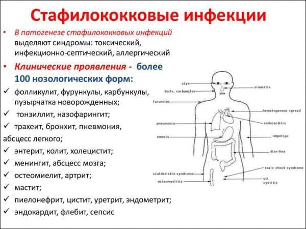 obshhie-xarakteristiki-stafilokokkovoj-infekcii