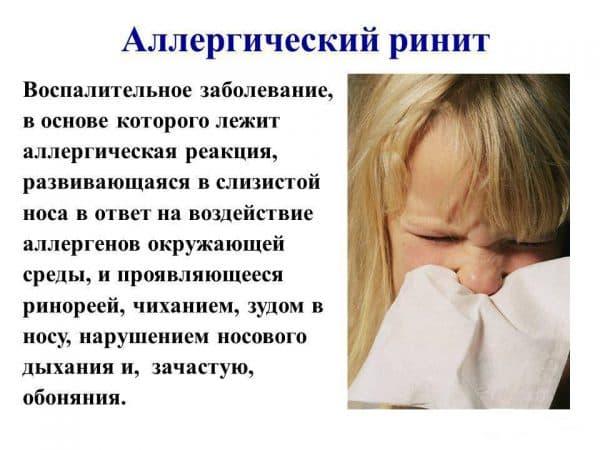 аллергический ринит определение