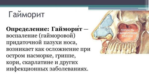 opredelenie-gajmorita