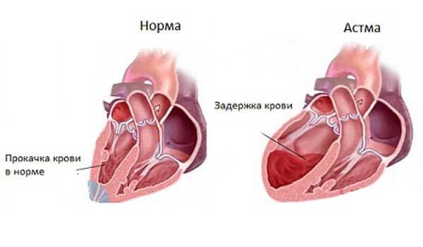 opredelenie-serdechnoj-astmy