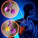 Пневмония без симптомов: как возникает?
