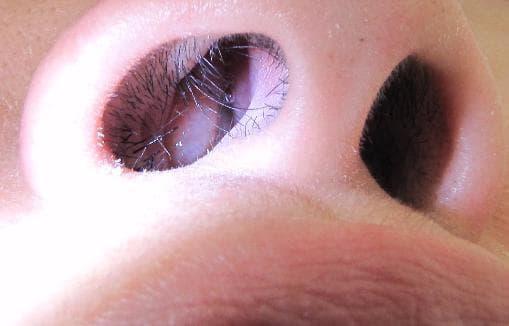 Как распознать и вылечить полипы в носу у ребенка