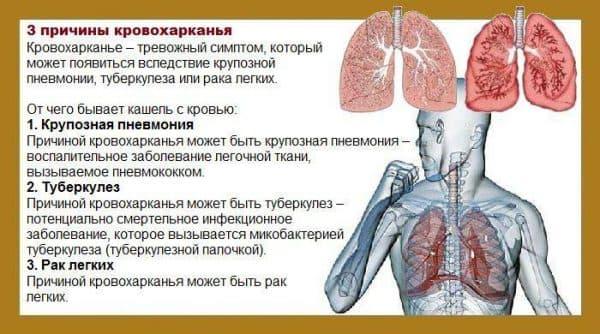 prichiny-krovoxarkaniya