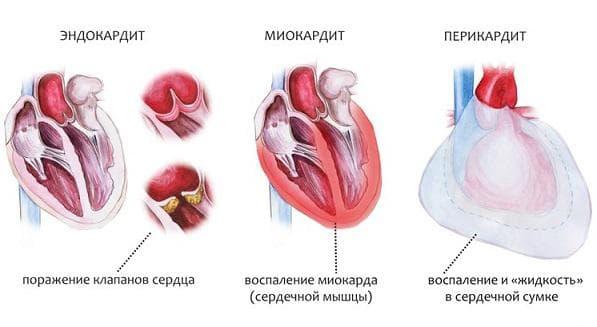 serdechnye-patologii
