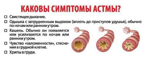 simptomy-bronxialnoj-astmy