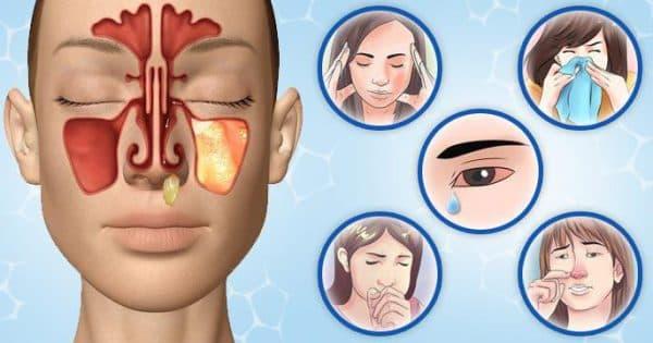 К симптомам относят головную боль, слезотечение, заложенность носа,