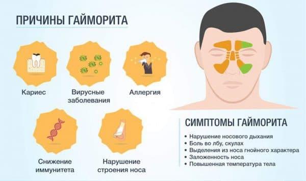 simptomy-gajmorita