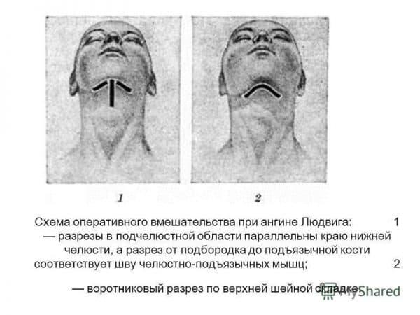Хирургическое лечение ангины Людвига