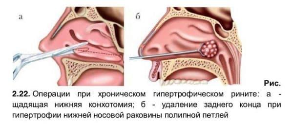Хирургическое лечение гипертрофического ринита