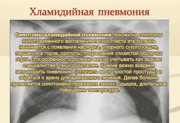 xlamidijnaya-pnevmonij